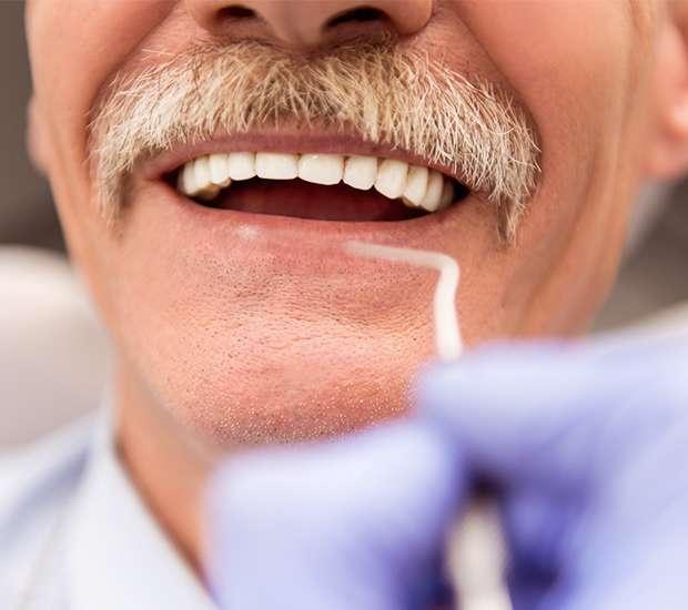 Babylon Adjusting to New Dentures