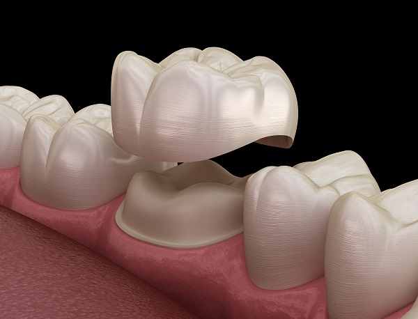 When Are Dental Crowns Recommended By Dentists?