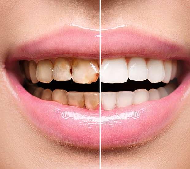 Babylon Dental Implant Restoration