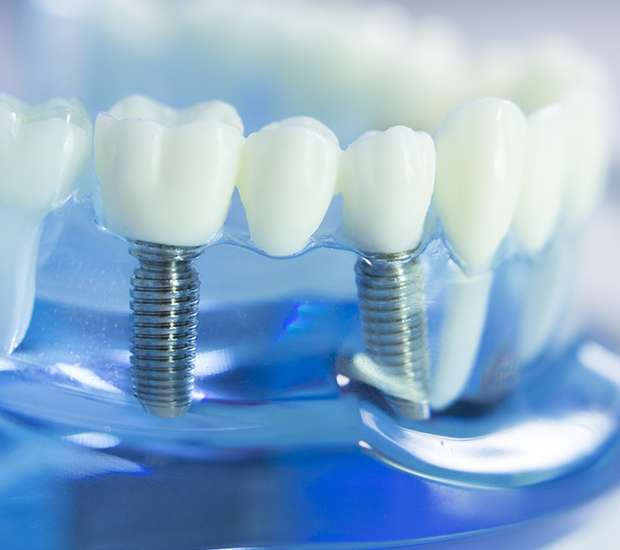 Babylon Dental Implants