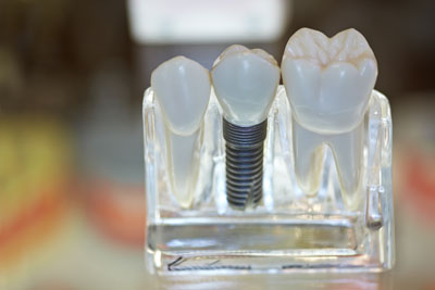 The Process Involved With Placing Dental Implants