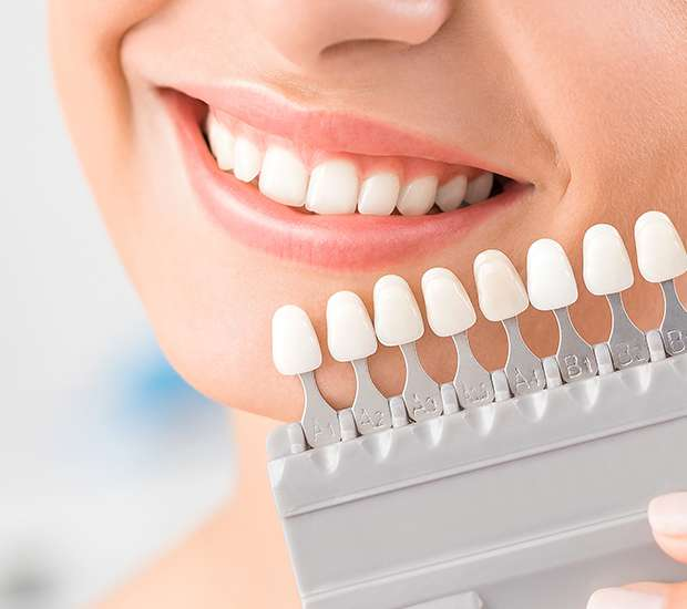 Babylon Dental Veneers and Dental Laminates