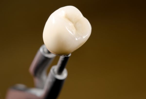 The Advantages Of Metal Free Crowns