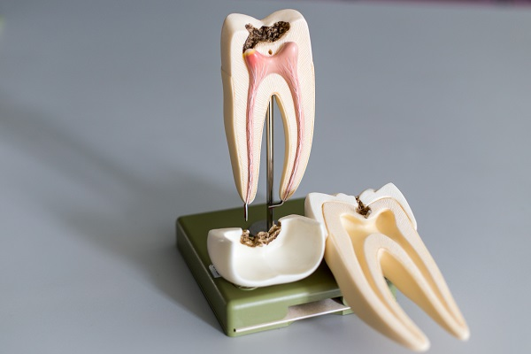 What Are The Most Common Endodontic Procedures?
