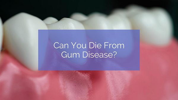 Can You Die From Gum Disease?