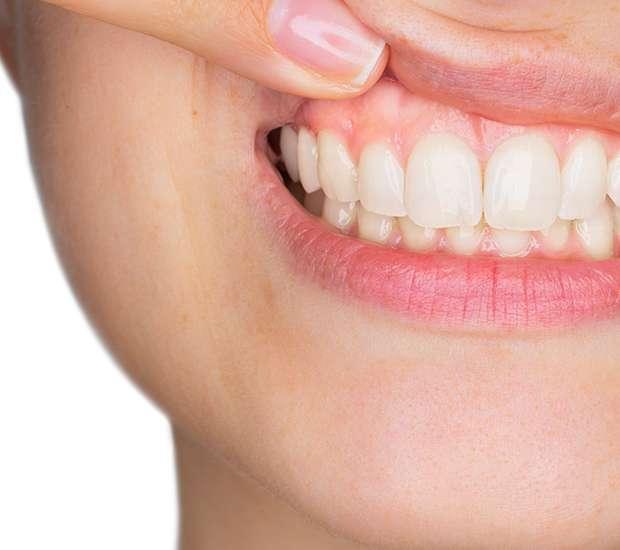 Babylon Gum Disease