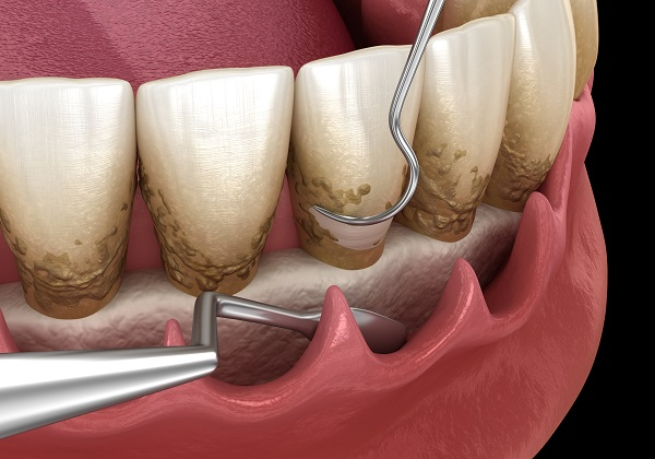Three Tips For Choosing The Right Dentist For Periodontics Treatment