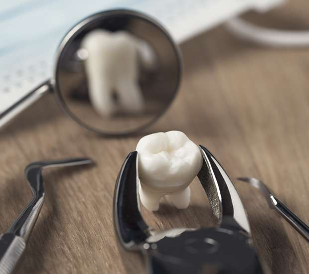 Babylon When Is a Tooth Extraction Necessary